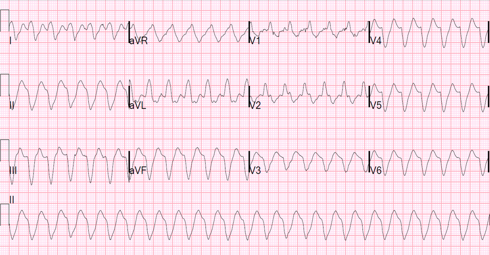 pictures How to Treat Hyperkalemia