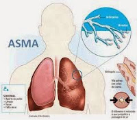 Obat Penyakit Asma Kronis