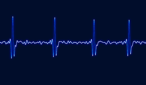 [Image: Oscillogram with strong triple-pointed spikes at regular intervals.]