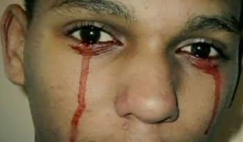 llora sangre enfermedad