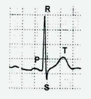 Gelombang-gelombang yang terbaca pada elektrokardiograf