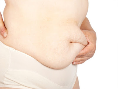 How to Reduce Belly Fat and Tighten Loose Skin