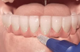 higiene implantes dentales cipolletti
