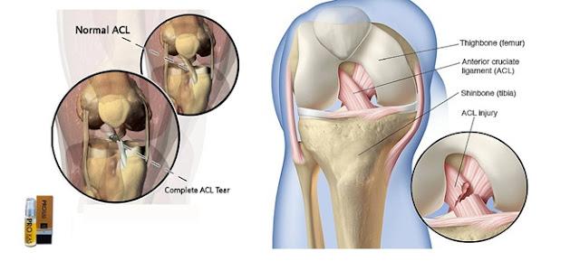 ProKas Penyembuh Sakit Sendi Dan Lutut