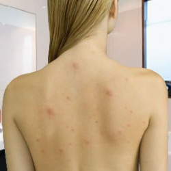 Image result for body acne