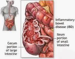 penyakit radang usus