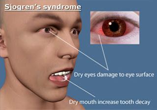 Sjogren's Syndrome Causes, Symptoms, Diagnosis, Treatment, Prevention, Home Remedies