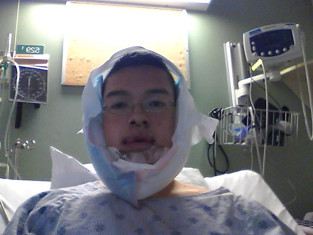 Gordon\'s Double Jaw Surgery: May 2011