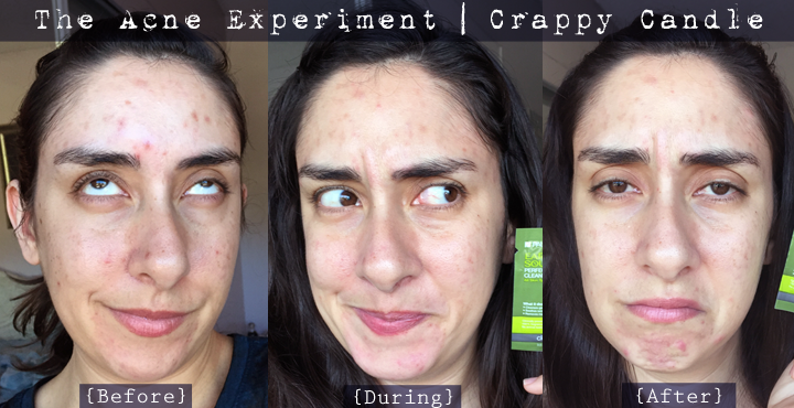 Paula's Choice Earth Sourced Cleansing Gel Before & After :: The Acne Experiment