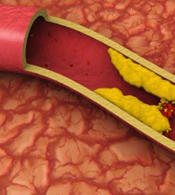 O verdade sobre Colesterol