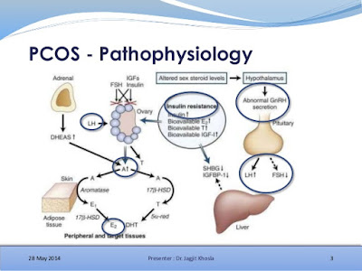 PCOS (polycystic ovary syndrome) or PCOD