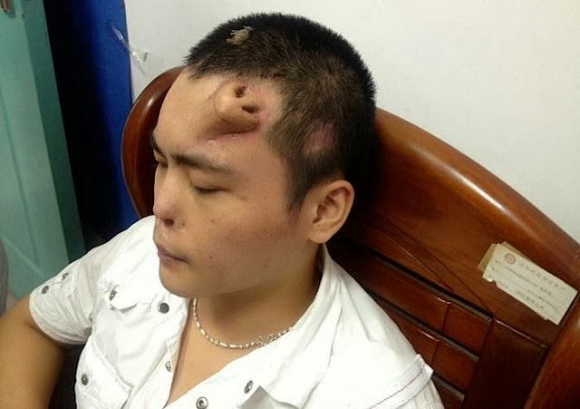 Chinese Doctors Grow Nose on Man's Forehead