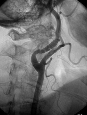 Fibromuscular dysplasia occuring on the carotid artery