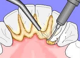 Cara Alami Membersihkan Karang Gigi
