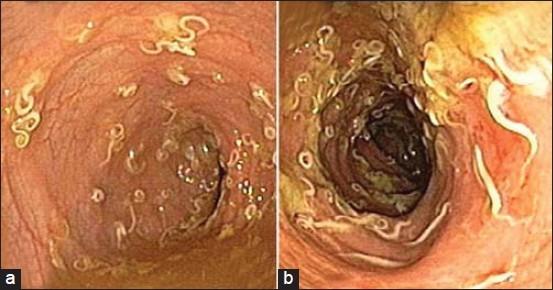 Los ojos los parásitos de la larva