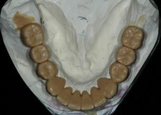 dental camera tool