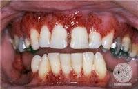 how common is wegener's granulomatosis