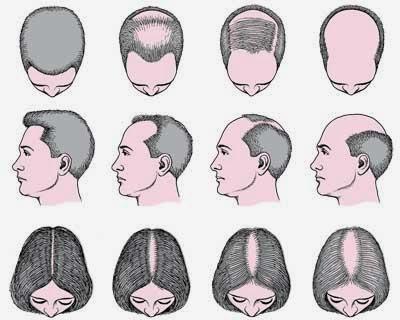 Jenis dan Penyebab Rambut Rontok Pada Pria Dan Wanita