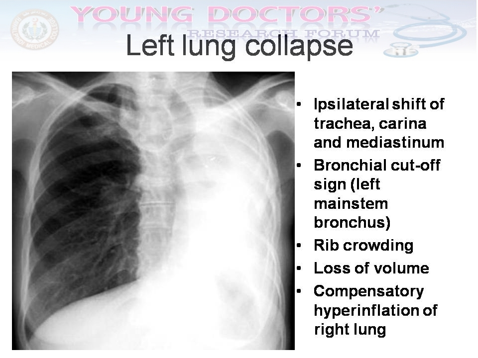 research papers on lung cancer