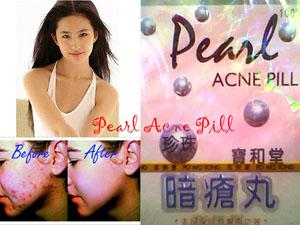 pearl+acne+pills Obat Jerawat.Acne Pil, Cara Menghilangkan Jerawat@Murah