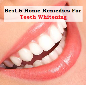 Best 5 Home Remedies for Teeth Whitening
