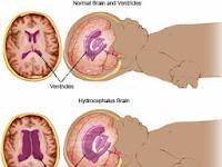 Mengenal Penyakit Hidrosefalus Pada Anak