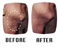 get rid of razor bumps, how do i get rid of razor bumps, how can i get rid of razor bumps, how do you get rid of razor bumps, how can you get rid of razor bumps, how to get rid of razor bumps, ways to get rid of razor bumps, how can i get rid of razor bumps fast, how do i get rid of razor bumps fast, how to get rid of razor bumps fast, get rid of razor bumps fast, how to get rid of razor bumps on thighs, get rid of razor bumps on legs, how to get rid of razor bumps on legs, how to get rid of razor bumps on neck, get rid of razor bumps on neck, how to get rid of razor bumps on face, how to get rid of razor bumps and ingrown hairs, best way to get rid of razor bumps, the best way to get rid of razor bumps, how to get rid of razor bumps scars, how to get rid of razor bumps and scars, how to get rid of razor bumps for black men, how to get rid of razor bumps on black men, home remedies to get rid of razor bumps, how to get rid of razor bumps on head, how to get rid of razor bumps for women, how to get rid of underarm razor bumps, how do u get rid of razor bumps, what to use to get rid of razor bumps, how to get rid of razor bumps on legs fast, products to get rid of razor bumps, what can i use to get rid of razor bumps, hot to get rid of razor bumps, how to get rid of severe razor bumps, how 2 get rid of razor bumps