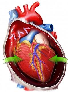 Traumatismo cardiaco