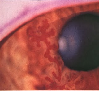 Herpes Simplex Infection In The Cornea | Share All Knowledge