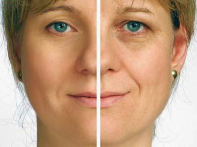 cara menghilangkan kerutan di wajah