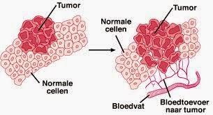 macam penyakit kanker