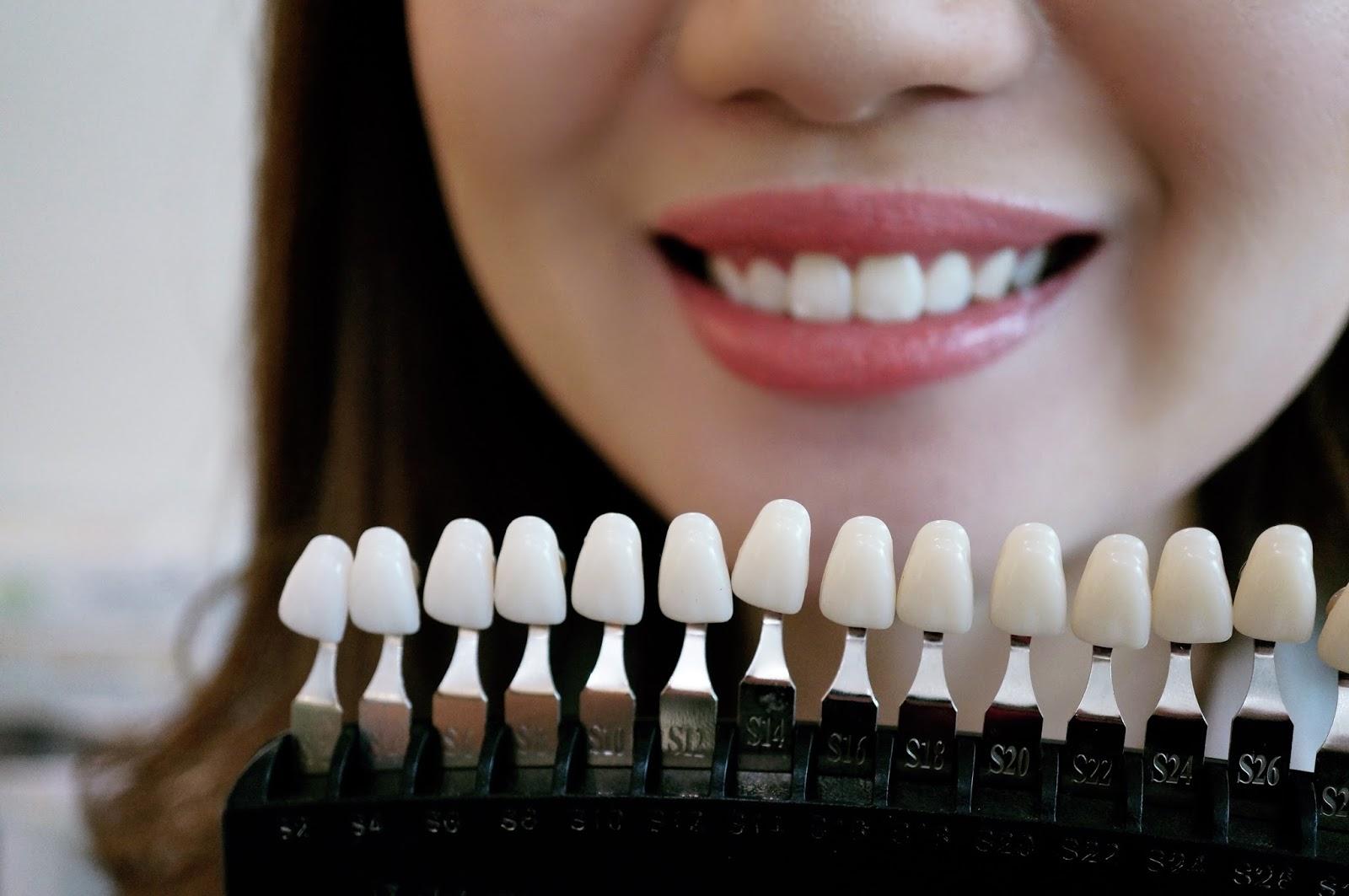 Theresa Beauty Led Teeth Whitening Review I Love Bunny