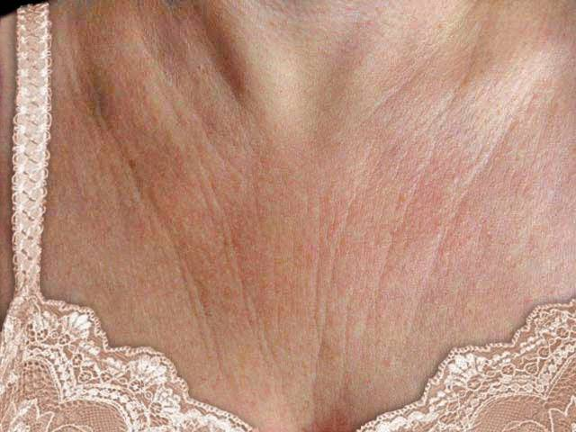 how to prevent cleavage wrinkles