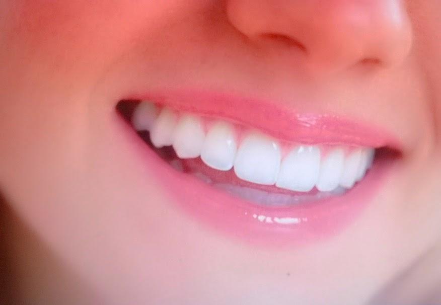 Cara Mudah Menghilangkan Karang Gigi Secara Alami Padat Informasi
