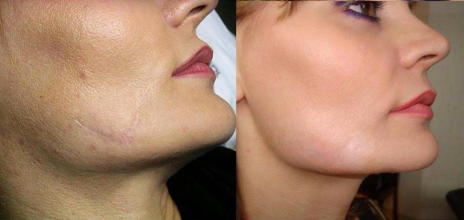 آثار الندوب في الجسم وحفر الوجه