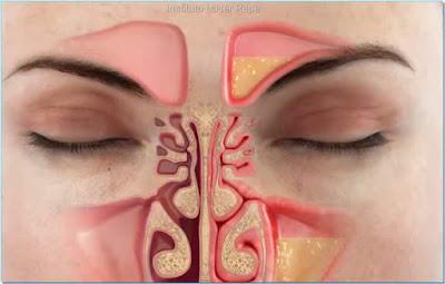 Pengobatan Sinusitis Secara Alami