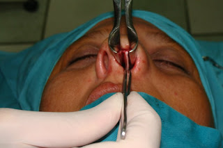 rinoplastia, rinoplastia laser, rinoplastia peru