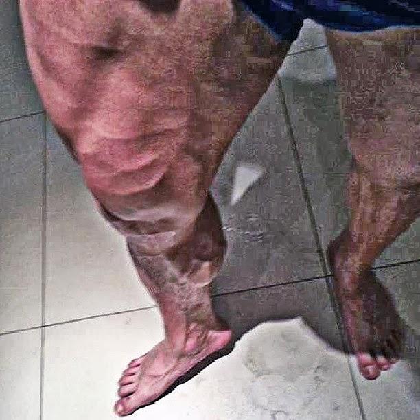 Gustavo Almeida mostra as pernas vascularizadas. Foto: Reprodução
