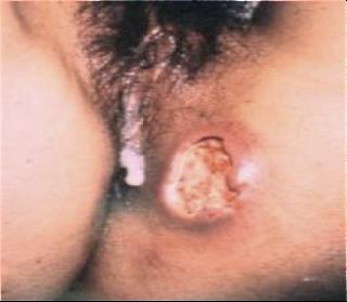 Las cremas de las cicatrices después del acné