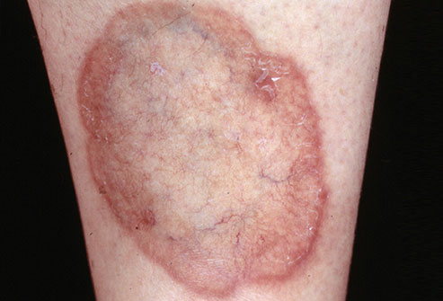non itchy rash - eMedicineHealth