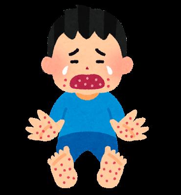 手足口病のイラスト