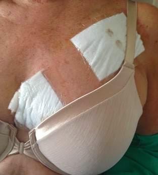 boob job pacemaker