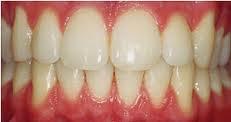 تبيض تجميل الاسنان والتخلص من الاصفرار teeth whitening