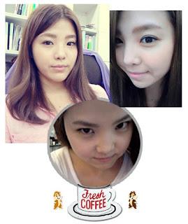 foto sebelum dan sesudah operasi plastik hidung di Wonjin-1