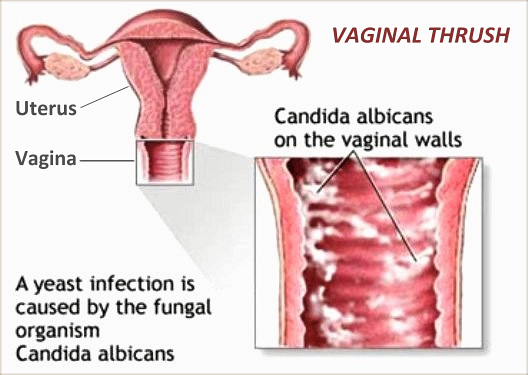 What is vaginal thrush? Marilyn Glenville