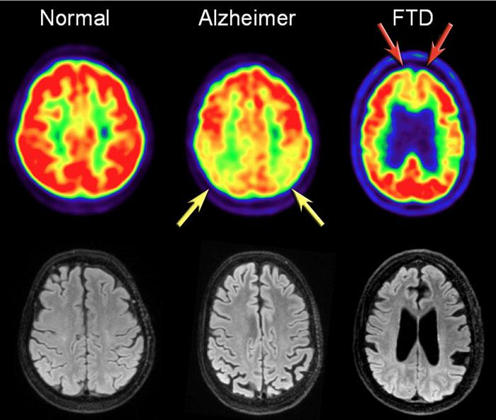 NeuroAnatomía Dr. William Ganem: Degeneración Lobar Fronto Temporal