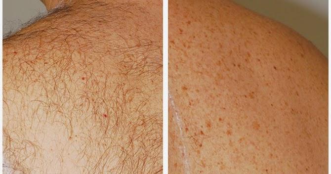 Dopo epilazione laser barba capelli