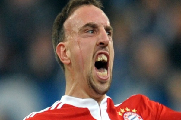 Crashed Cars Before And After Franck Ribery Before Car Crash