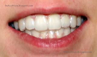 Zęby w trakcie wybielania metodą nakładkową