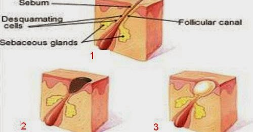 Sebaceous gland removal